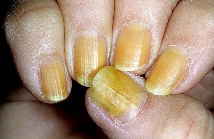 Почему стали желтыми ногти на руках: причины и лечение в домашних условиях