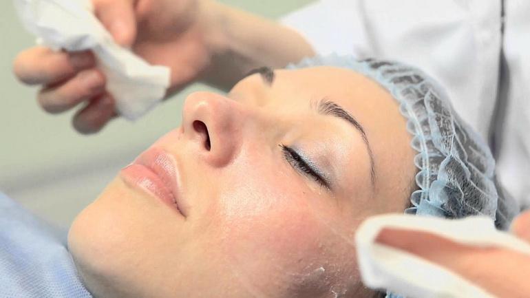 Салонная процедура от пигментных пятен на лице