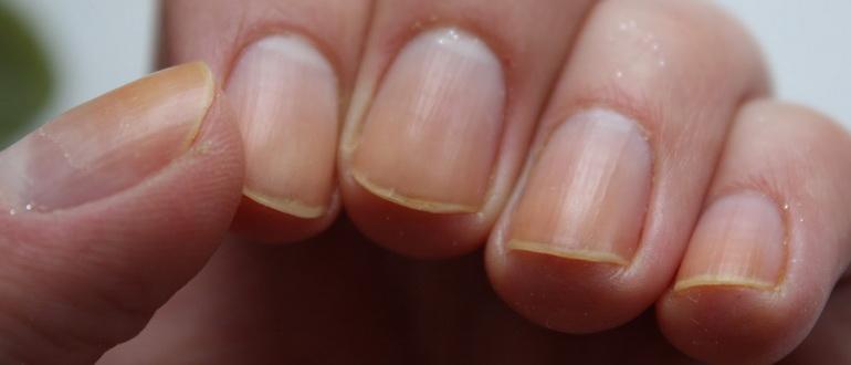 Желтые ногти на руках: причины и лечение в домашних условиях