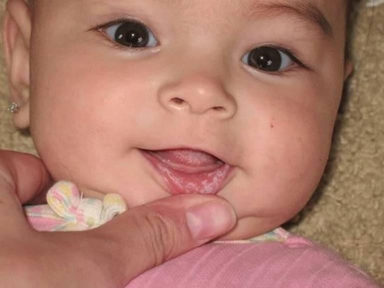 Если у малыша припухают десна