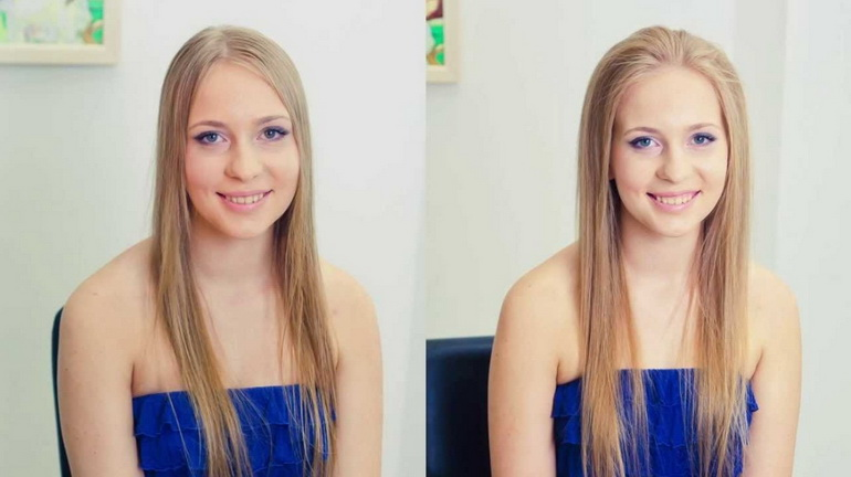 девушка до и после процедуры Boost up