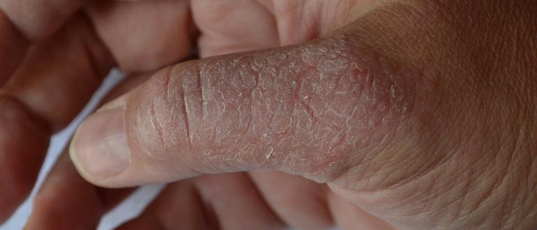 Отчего трескается кожа на пальцах рук, и как лечить